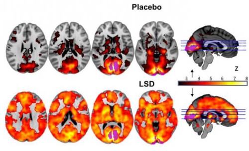 The areas that contributed to vision were more active under LSD, which was linked to hallucinations